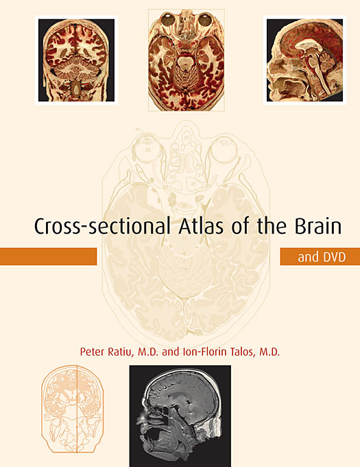 Cover: Cross-sectional Atlas of the Brain and DVD, from Harvard University Press