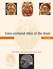 Cover: Cross-sectional Atlas of the Brain and DVD in HARDCOVER