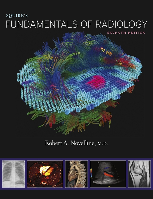 Cover: Squire's Fundamentals of Radiology: Seventh Edition, from Harvard University Press