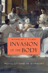 Jacket: Invasion of the Body: Revolutions in Surgery, by Nicholas L. Tilney, from Harvard University Press
