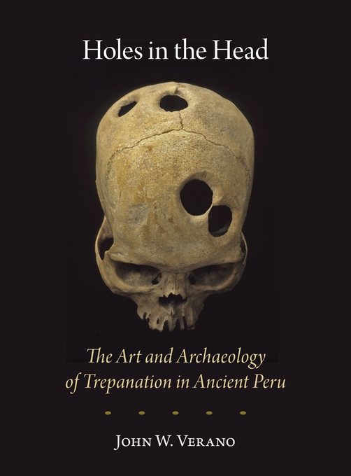 Cover: Holes in the Head: The Art and Archaeology of Trepanation in Ancient Peru, from Harvard University Press